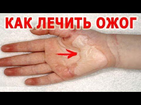 Die Candidose auf den Nägeln als zu behandeln