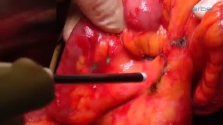 Ablation of mesenteric tumor in peritoneal carcinomatosis with APCapplicator