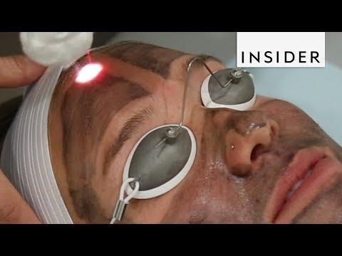 Laser blepharoplasty ng itaas na eyelids Ufa