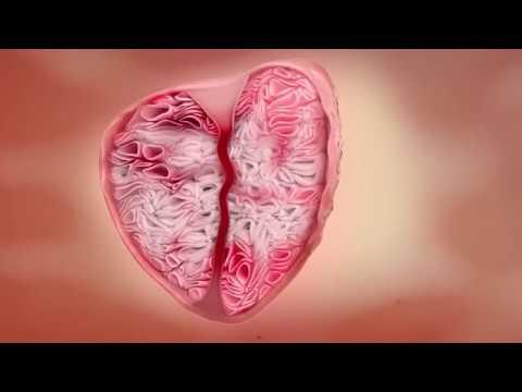 Алоказия от простатита
