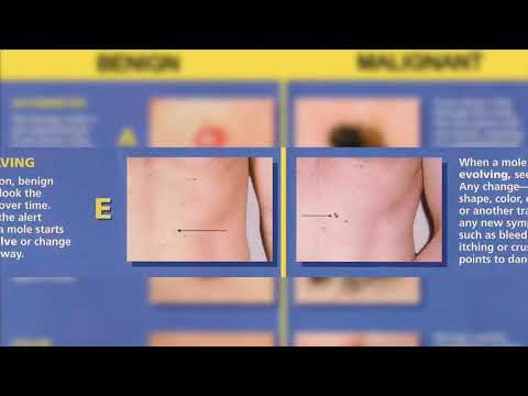 Melanoma Treatment with Dr. Shauna Diggs