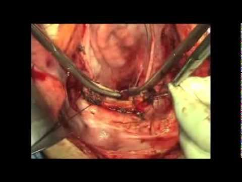 Total Abdominal Hysterectomy | Atlas of Gynecologic Surgery
