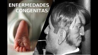 Enfermedades Congenitas | H3TV |