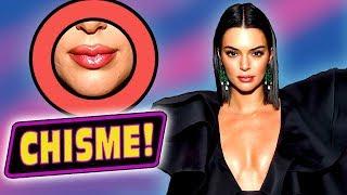 ¿Kendall Jenner Hospitalizada por Inyectarse los Labios?