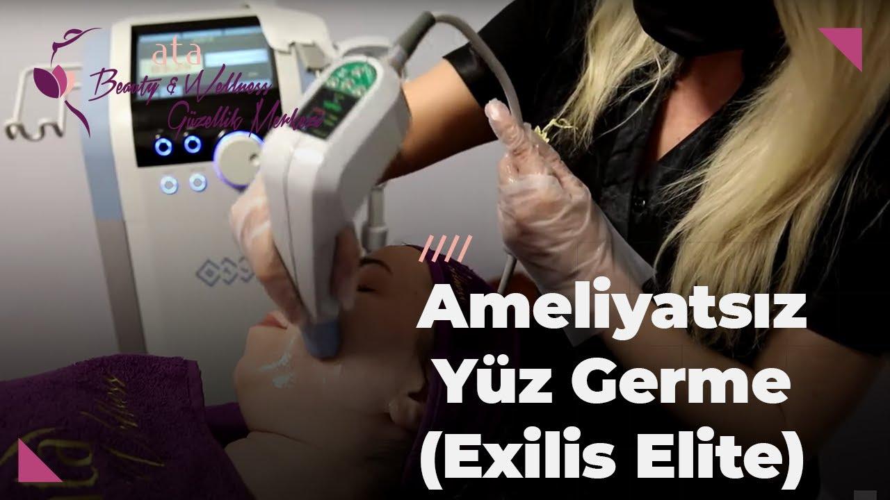 Ameliyatsız Yüz Germe (Exilis Elite)