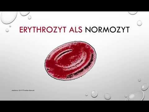 BPH Blut im Urin