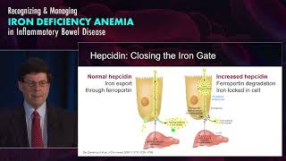 Understanding Iron Deficiency Anemia in Gastroenterology: Who and Why?