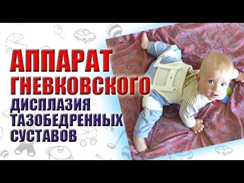 АППАРАТ ГНЕВКОВСКОГО / Дисплазия тазобедренных суставов