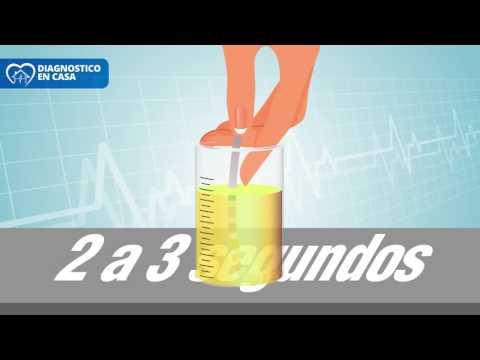 Мкб 10 сахарный диабет 1 тип