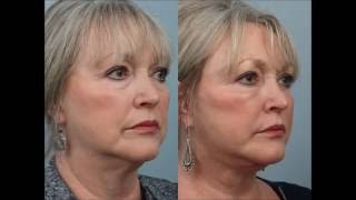 Female Deep Plane Facelift with Lower Lid Blepharoplasty and Lipotransfers by Dr. Edwin Williams