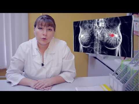 Патогенез рака простаты