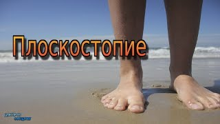 ПЛОСКОСТОПИЕ / FLAT FEET