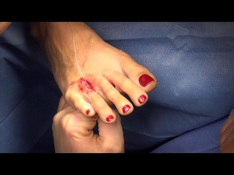 Korekcja krzywo ustawionego palca u nogi