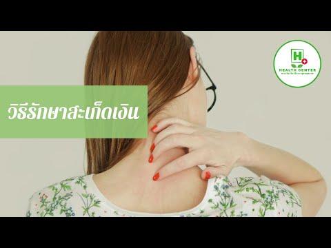 Dexamethasone สำหรับการรักษาโรคสะเก็ดเงิน