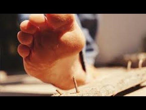 Fungo de prego em uma perna para tratar o iodo