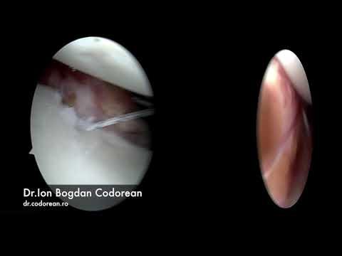 Artrita reumatoidă în articulația șoldului