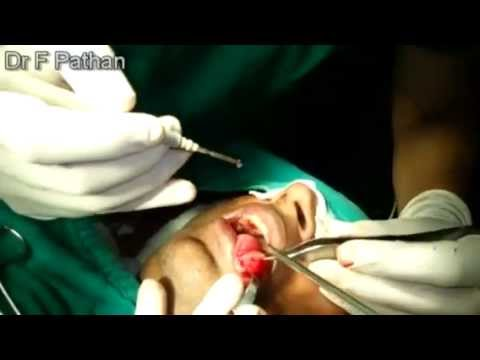 Enterobius vermicularis treatment
