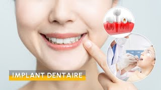 Video Implant Dentaire