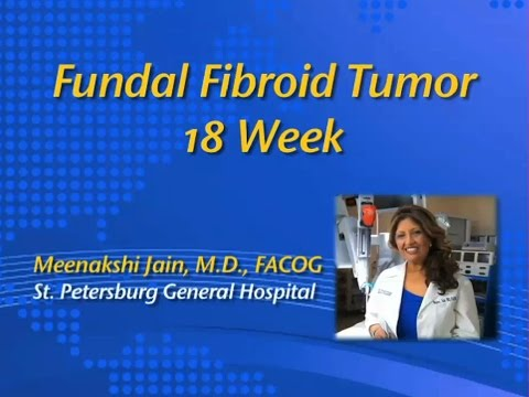 Fundal Fibroid Tumor 18 Week