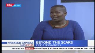 Beyond the Scars: Surviving lung cancer