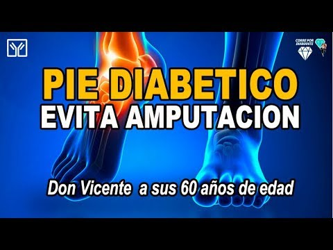 Si la diabetes de pita tipo 2