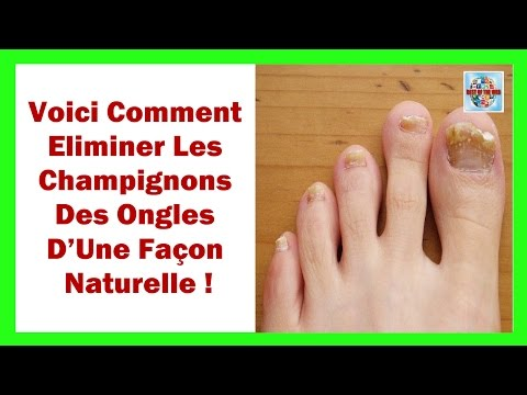 Le traitement linflammation du grand ongle