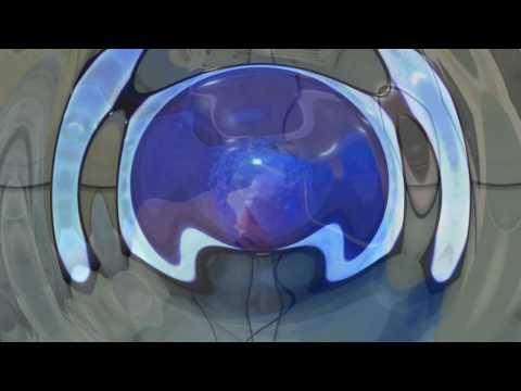 Лазерная коррекция зрения клиника тула