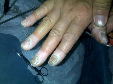 Otslojenije die Nägel zu behandeln
