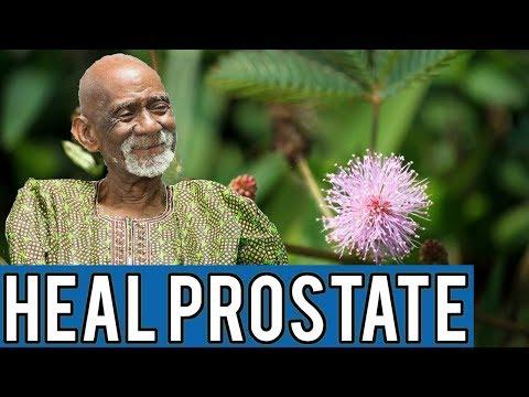 Regole prostata cellule epiteliali