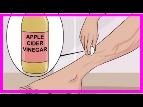 Les exercices pour les pieds après lopération sur les veines
