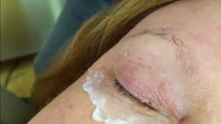 Skin tag on the eyelid with Plasmage ®