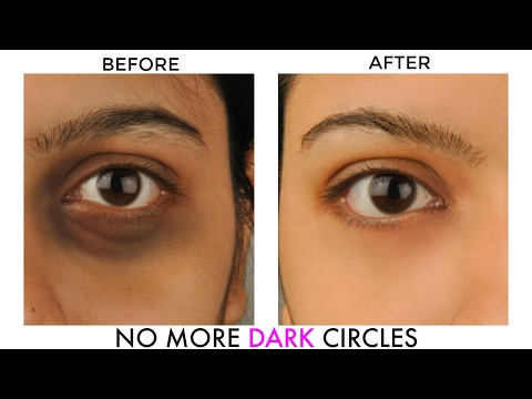 GET RID OF UNDEREYE DARK CIRCLES & BAGS : NATURAL HOME REMEDIES | OMABELLETV