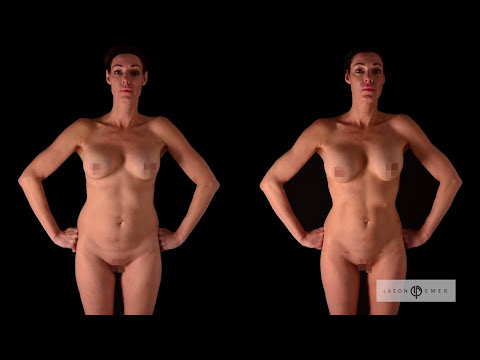 HD Liposuction