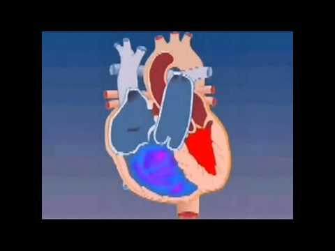 Hypertonický roztok glukózy a chlorid sodný