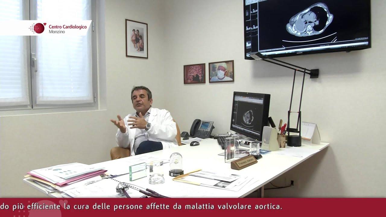 Intervista Prof. Francesco Alamanni, Coordinatore Area Chirurgia Cardiovascolare - 3