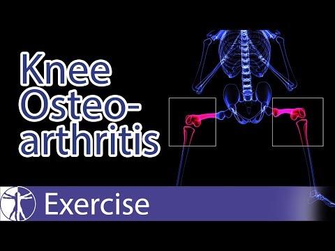 Az artrózisról és annak kezeléséről