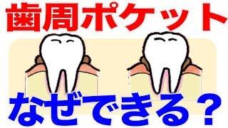 歯周ポケットはこうしてできる!