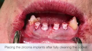 Dr. Dominik Nischwitz –Keramik Sofortimplantate OK