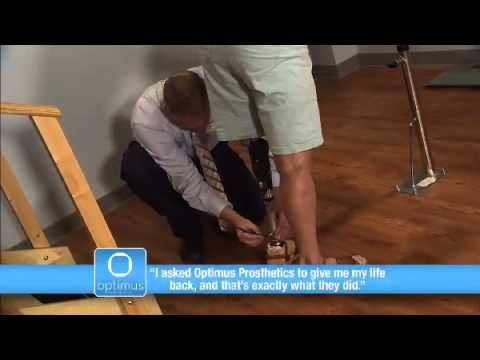 Patient Testimonial - Optimus Prosthetics Commercial