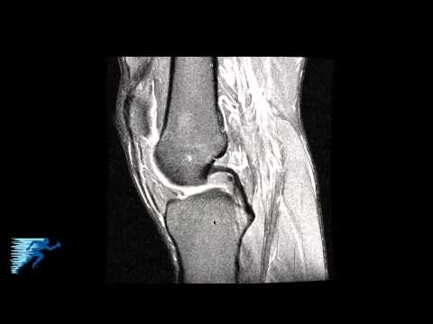 How to Read Knee MRI of Radial Meniscus Tear