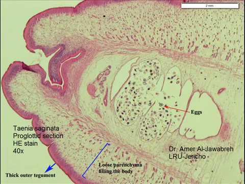hány proglottid van egy bika szalagféregben