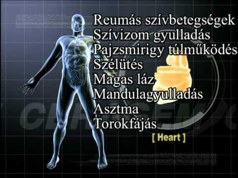 Minden ízület deformáló artrózisa 3 fokos kezelés