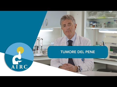 Cancer hepatic treatment