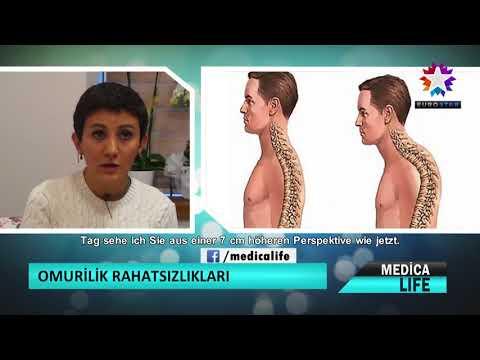 Die Gleichrichtung der Statik lordosa der Halswirbelsäule