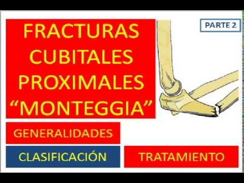 Artrita reumatoidă simptomele mâinilor
