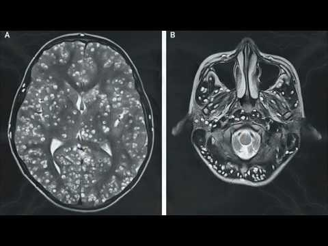 Cancer de colon operacion complicaciones