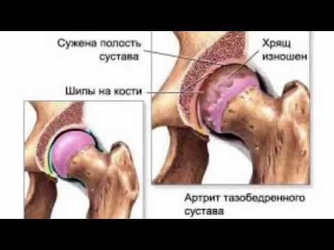 Список мазей при болях в суставах и мышцах