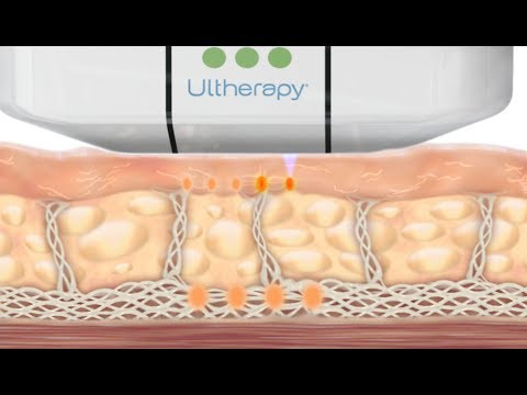How the Ultherapy Treatment Works