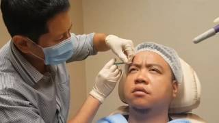 How Botox Is Injected: Premier Clinic