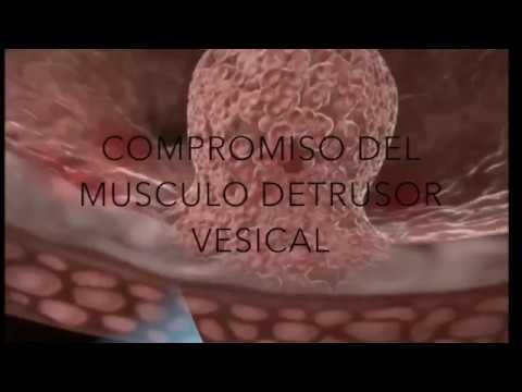 Adenoma de próstata Malakhov